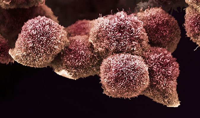 Pancreatic cancer: If you have diabetes you could be more at