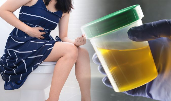 From multivitamins pee yellow Ask a