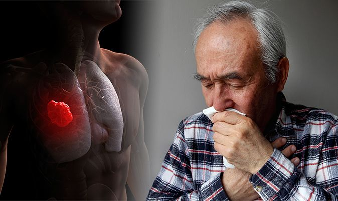 Lung cancer symptoms and signs: Blood in your phlegm when
