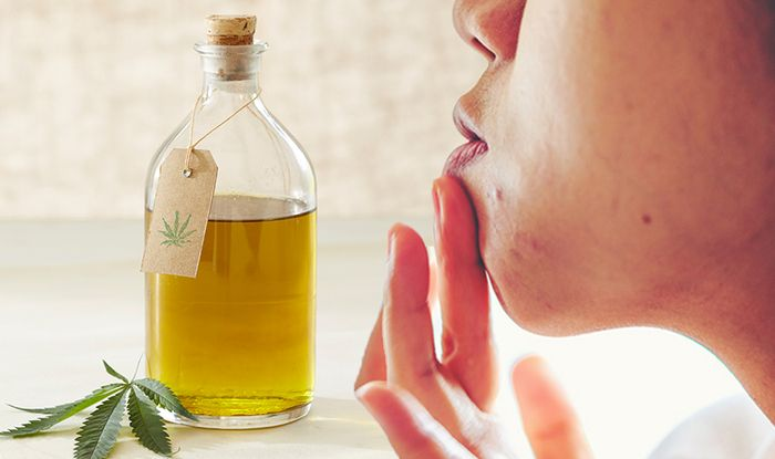 CBD oil: Can it help to reduce acne and spots?   Express co uk