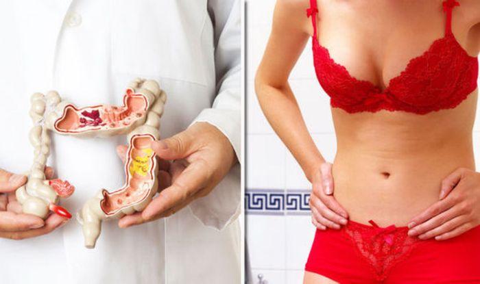 Bowel cancer symptoms: Signs of disease similar to PILES