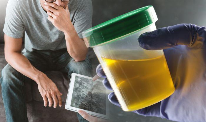 Cancer Screening Package for Male in Thambu Chetty Palya (Bengaluru) starting @ | Healthians