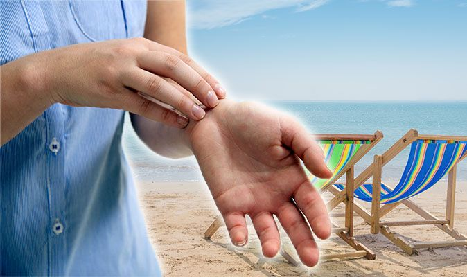 Eczema: Dry skin flare-up caused by hot heatwave weather