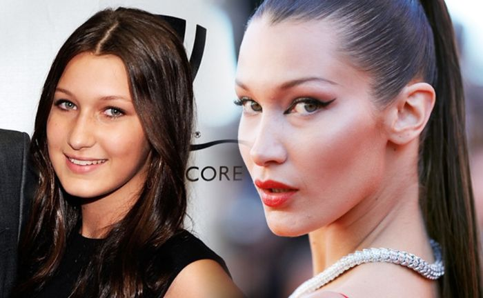 Bella Hadid before and after: Has she had surgery? An expert