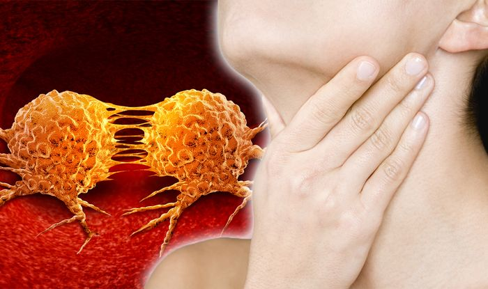 Lymphoma cancer symptoms: A lump in the neck, armpit or