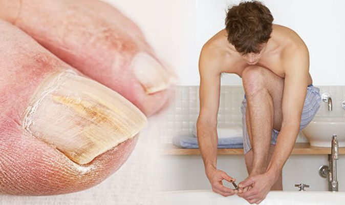 How To Get Rid Of An Ingrown Toenail Cut Your Nail Straight