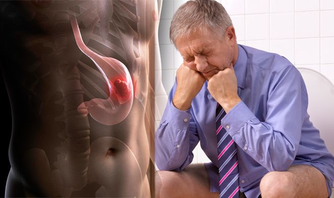 Miraculous Stomach Cancer Symptoms And Signs Dark Almost Black Poo Unemploymentrelief Wooden Chair Designs For Living Room Unemploymentrelieforg