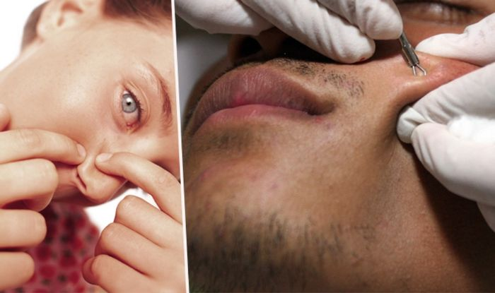 How to become Dr  Pimple Popper and squeeze blackheads