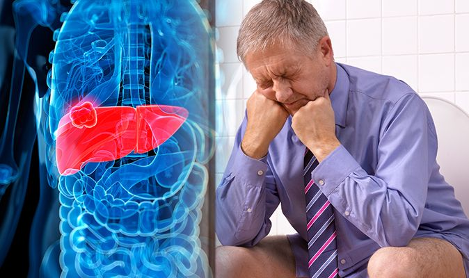 Incredible Liver Disease Symptoms Two Toilet Habits That Could Andrewgaddart Wooden Chair Designs For Living Room Andrewgaddartcom