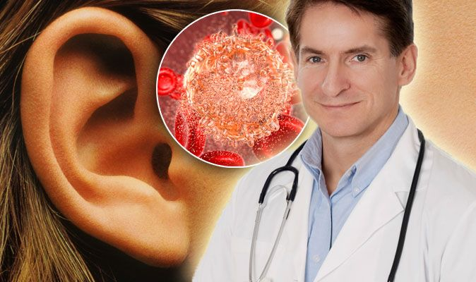 Cancer symptoms: Tinnitus and ringing in ears could be nose tumour